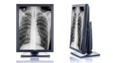 55 Radiologicheskij monitor JUSHA M23C