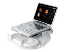 70 MyLab na portativnom ultrazvukovom ustrojstve Gamma